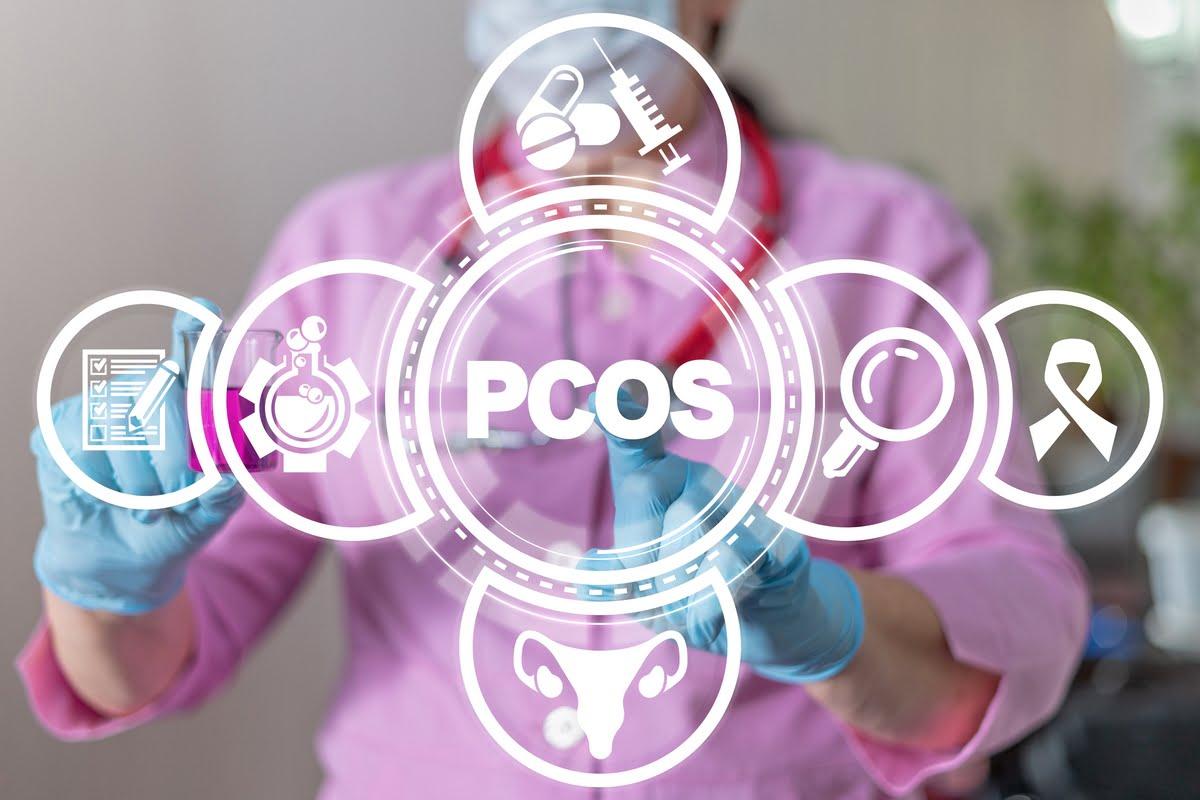 Sindrome PCOS, myo e D-chiro-inositolo